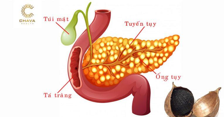 Tỏi đen chữa bệnh viêm tụy hiệu quả